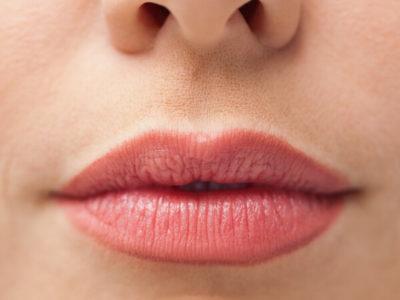 Aumento y Remodelado de labios